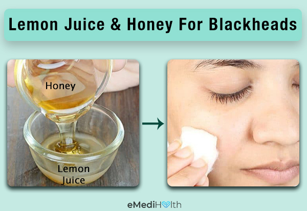 lemon juice and honey application can help prevent blackheads