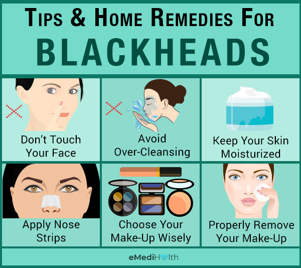 self-care tips to manage blackheads