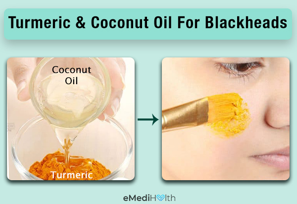 apply turmeric and coconut oil to prevent blackheads