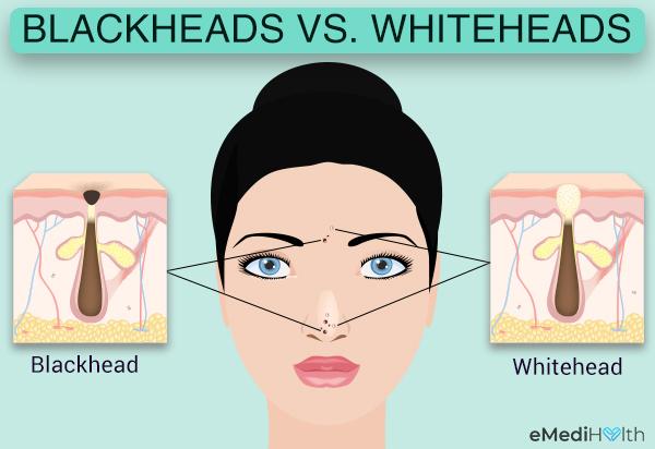 blackheads versus whiteheads