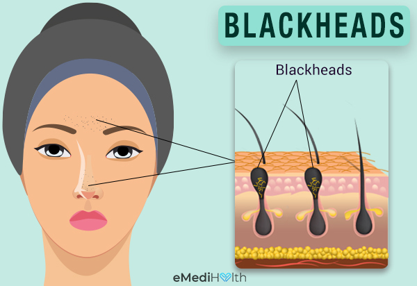 what leads to the formation of blackheads?