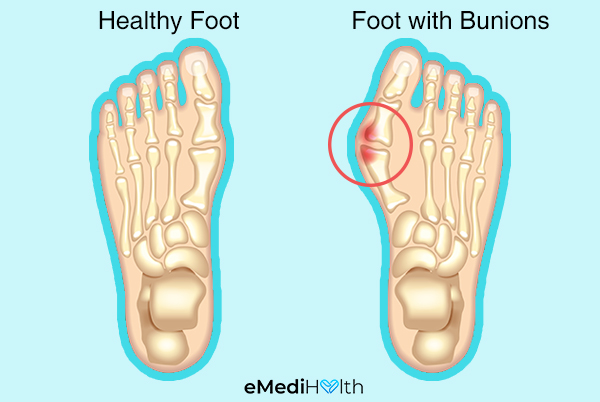 how prevalent is bunion pain?