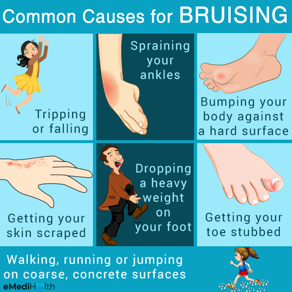 what are the causes behind bruising?