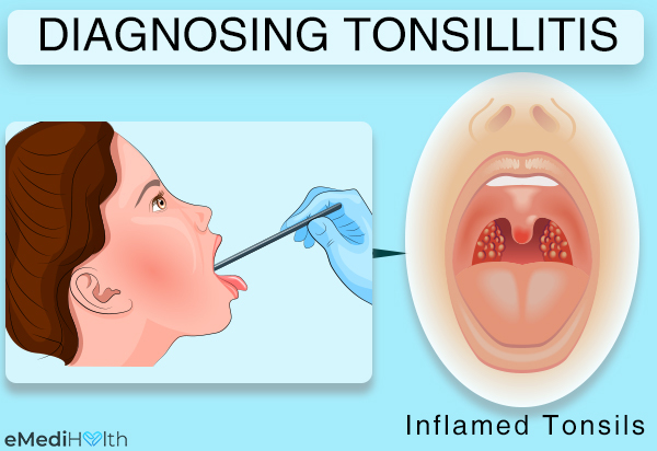 how is tonsillitis diagnosed?