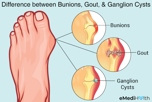 other foot conditions often confused with bunions