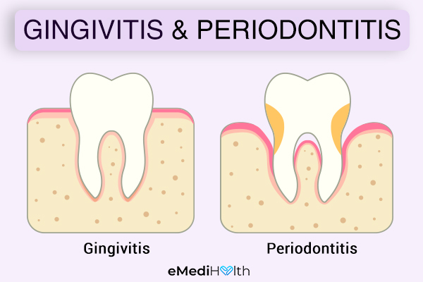 are gingivitis and periodontitis the same?