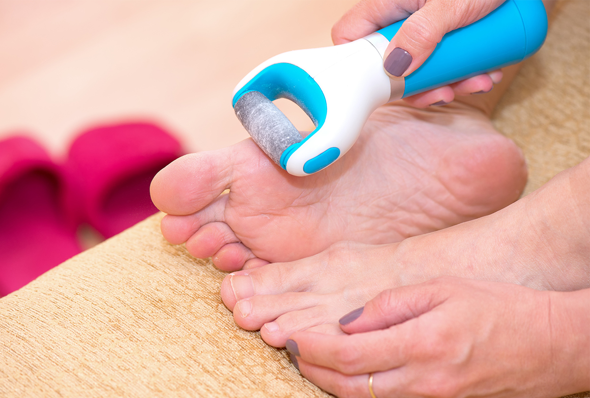 at-home remedies to relieve itchy feet