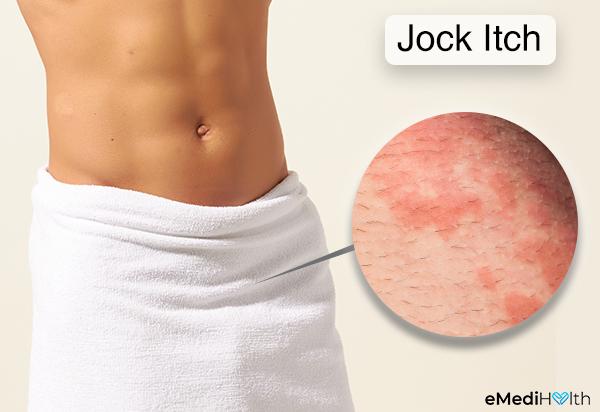 symptoms that indicate a jock itch