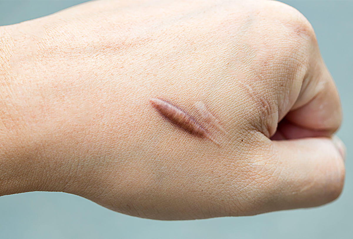 at-home remedies to prevent keloids