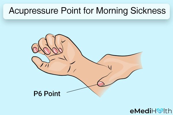 acupressure can help reduce the symptoms of morning sickness