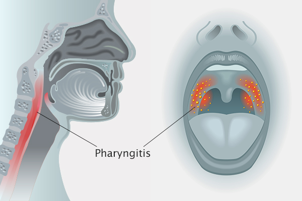 what causes pharyngitis?