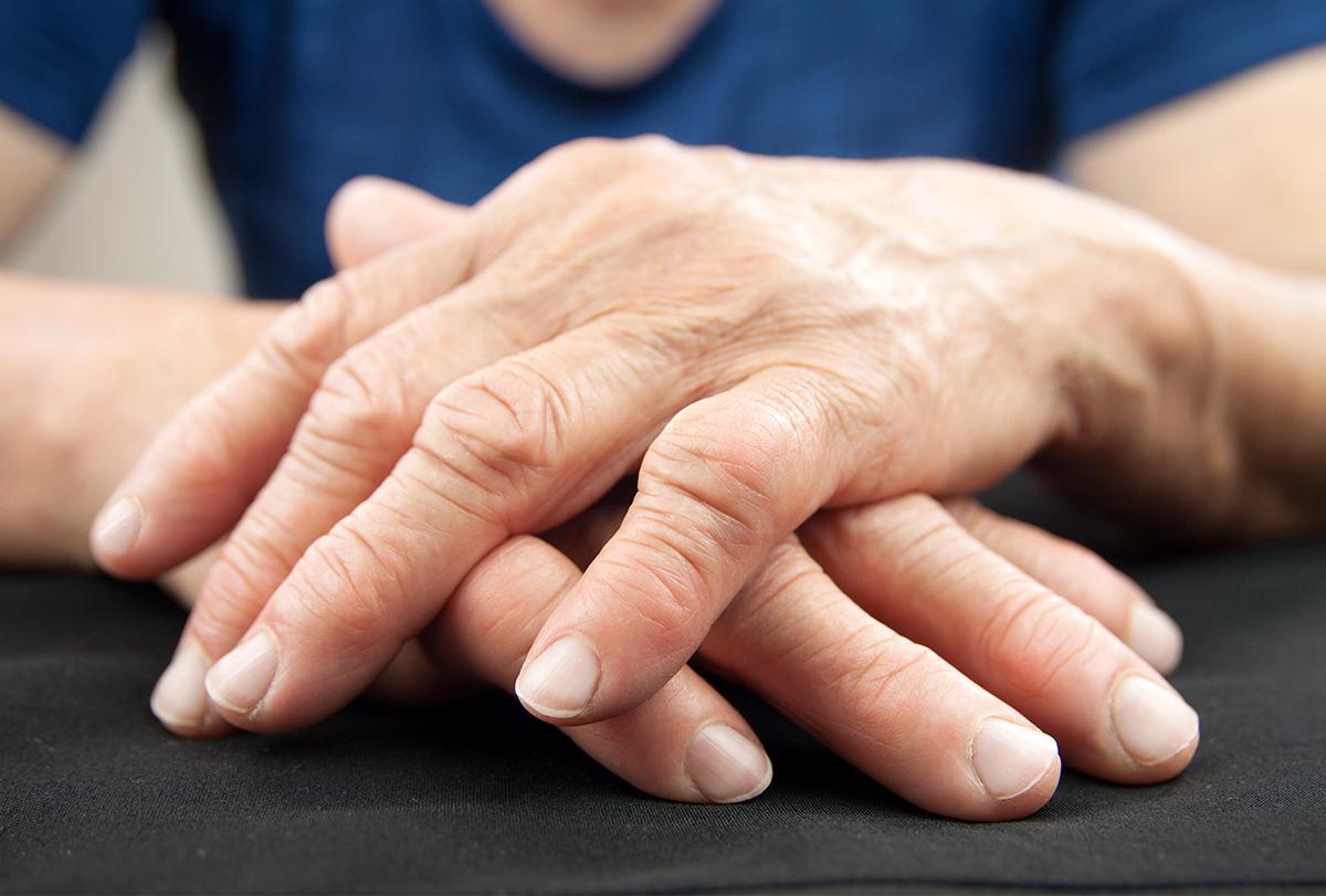 at-home remedies to cure rheumatoid arthritis