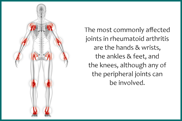 most commonly affected joints in rheumatoid arthritis
