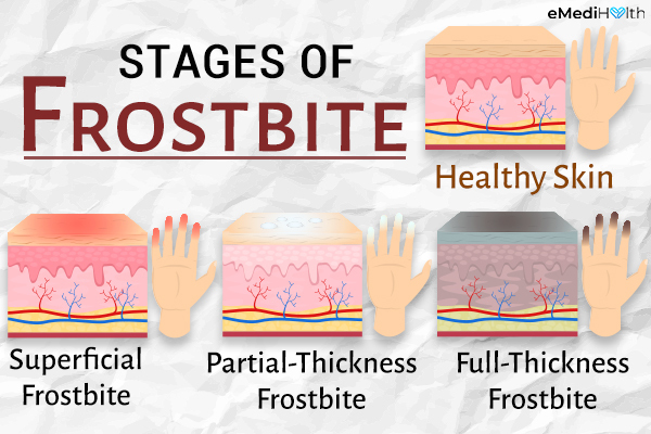 stages of frostbite