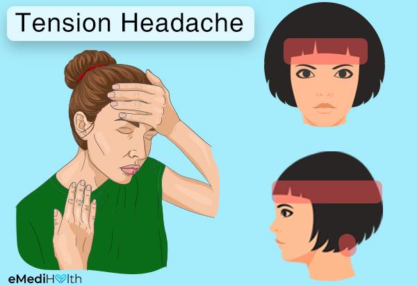 напрежение главоболие