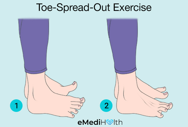 toe-spread-out-exercise for bunion pain relief