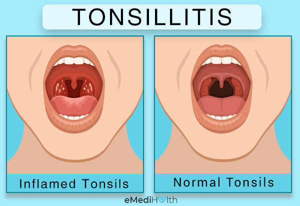 how to check for tonsillitis