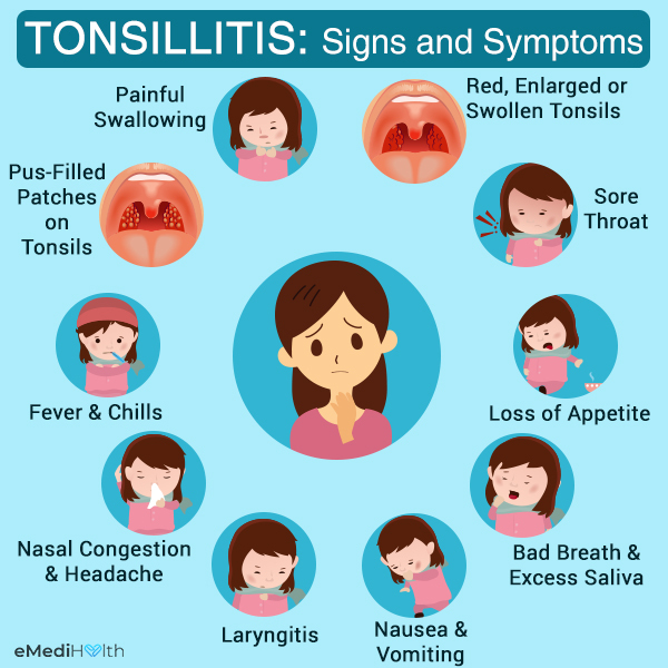 signs and symptoms that suggest tonsillitis