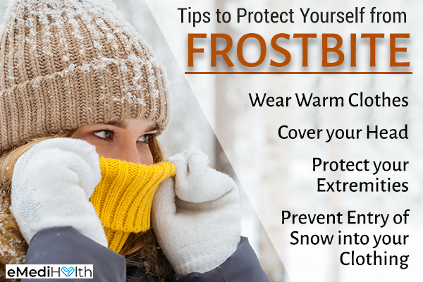 tips that can help prevent frostbite