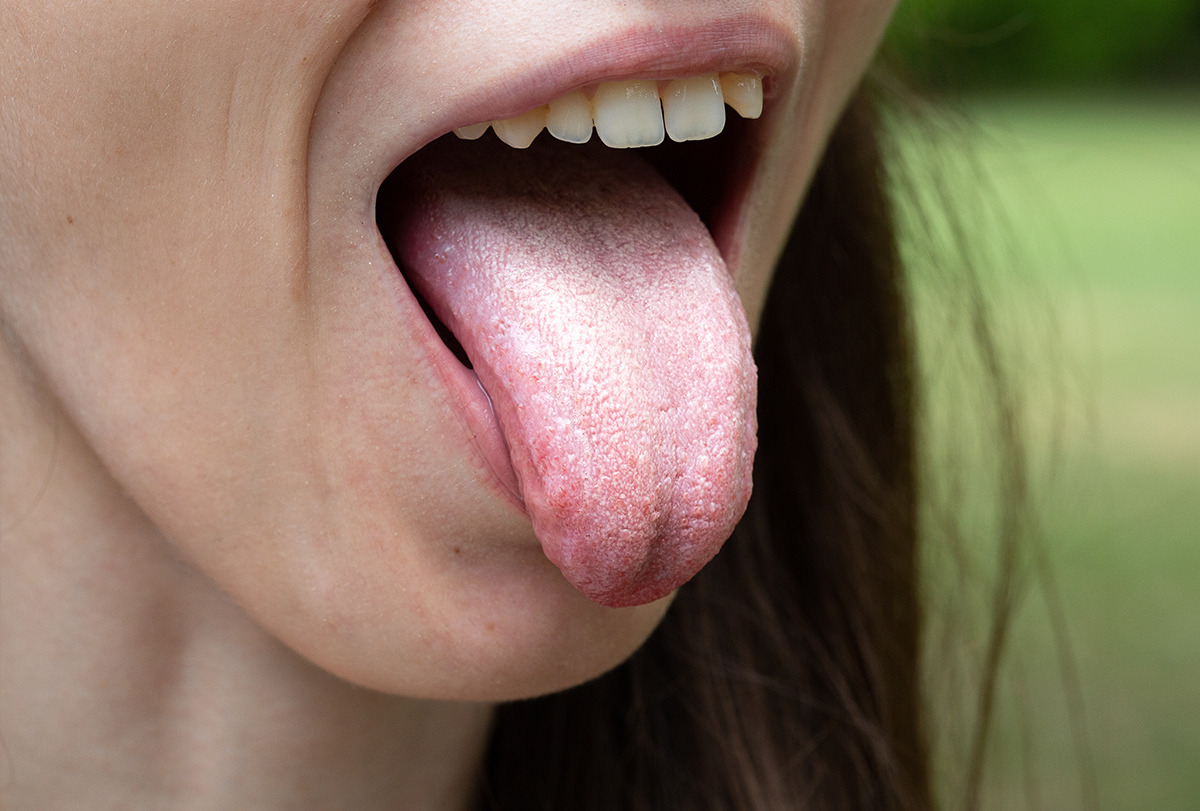reasons for a white tongue