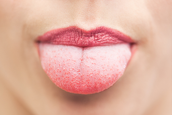 experts advice on dealing with a white tongue