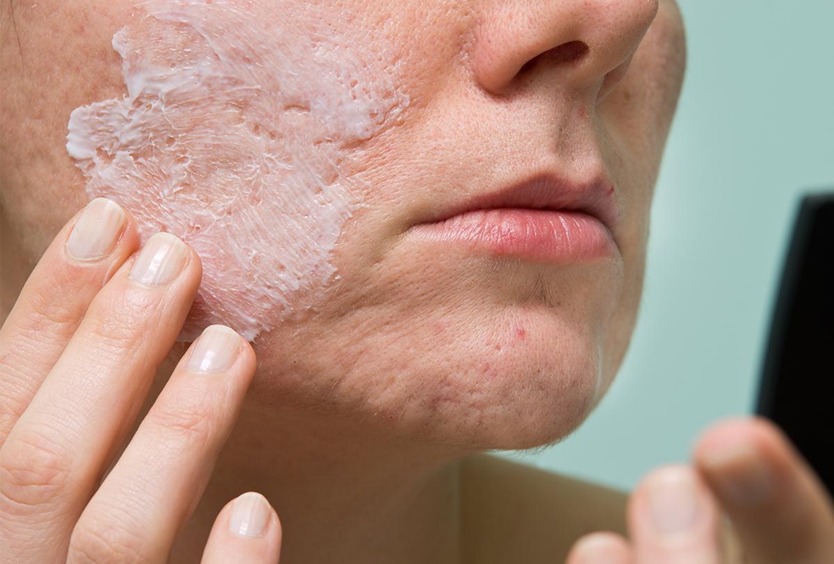 diy acne face masks