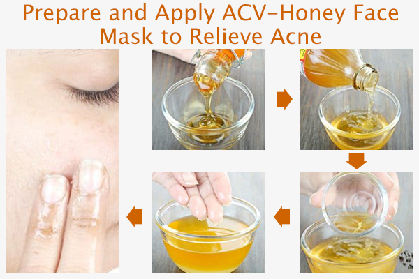 prepare and apply acv acne face mask