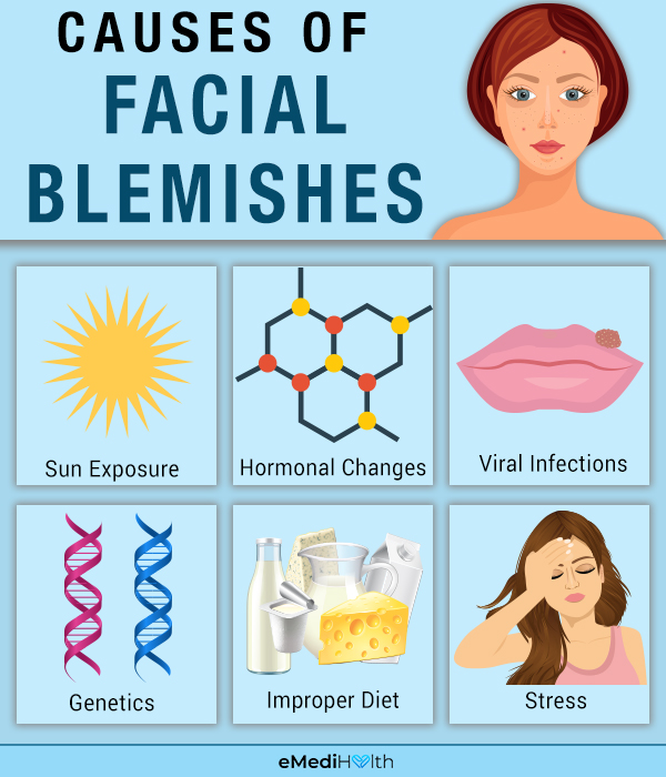 causes of facial blemishes