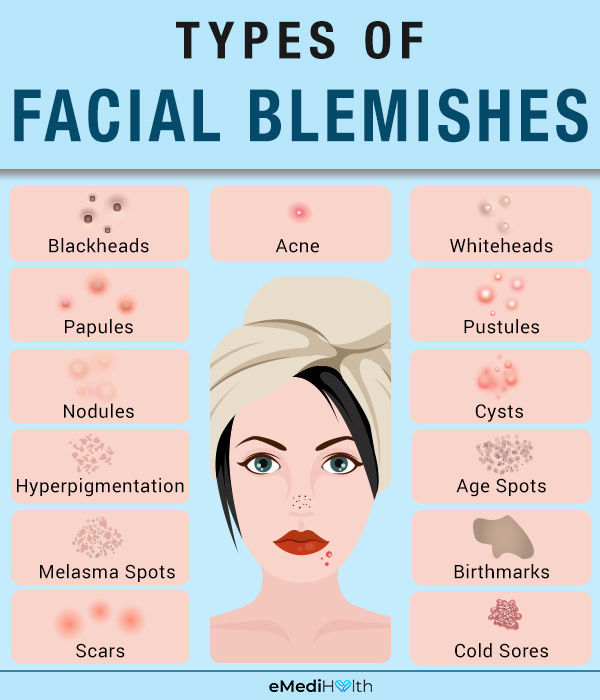 types of facial blemishes