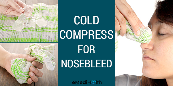 applying a cold compress can help stop a nosebleed