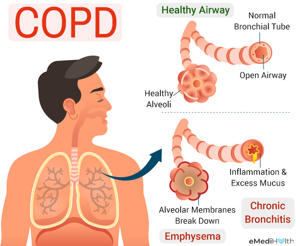 what are the causes behind copd?