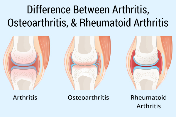 differences between different kinds of arthritis