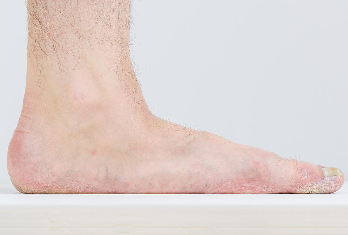 flatfoot surgery