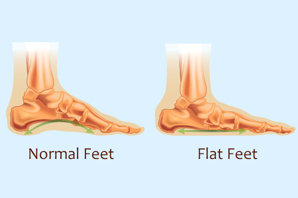 complications that accompany a flatfoot
