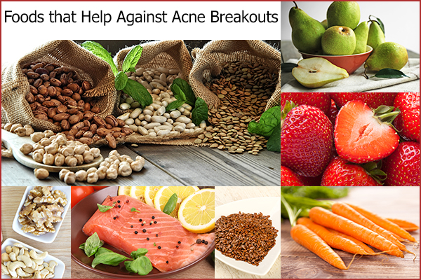foods that can help curb acne breakouts