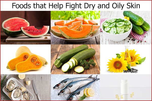 foods that can help you fight dry and oily skin