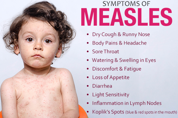 signs and symptoms that accompany measles