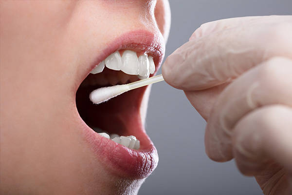 diagnosis of mouth ulcers