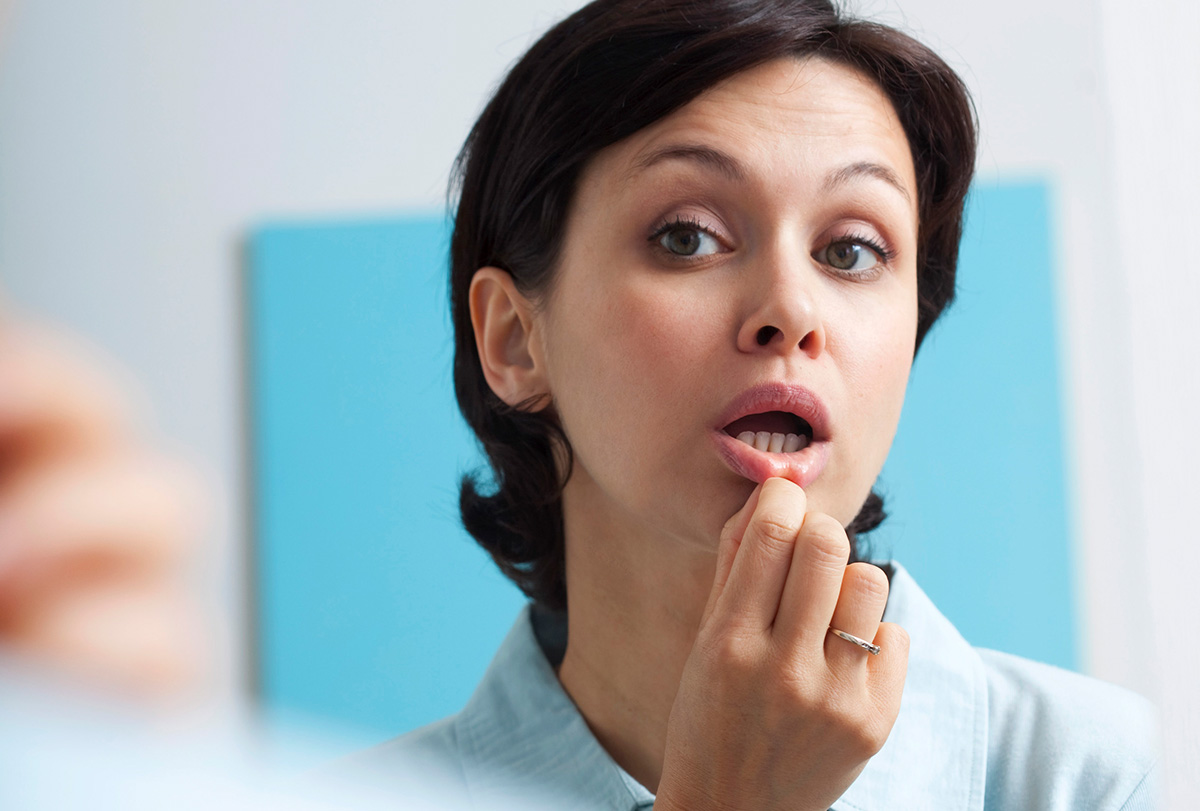 at-home remedies to treat mouth ulcers
