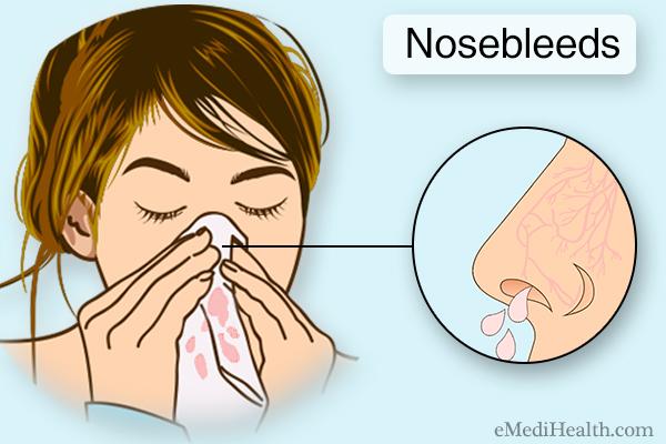 prevalence of nosebleeds