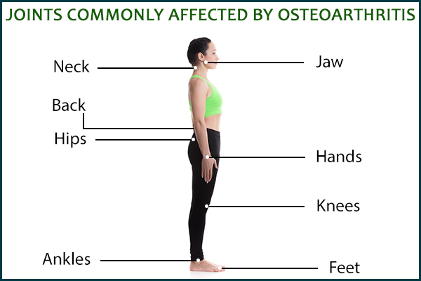 joints commonly affected by osteoarthritis