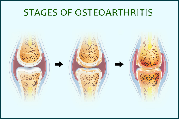 stages of osteoarthritis progression