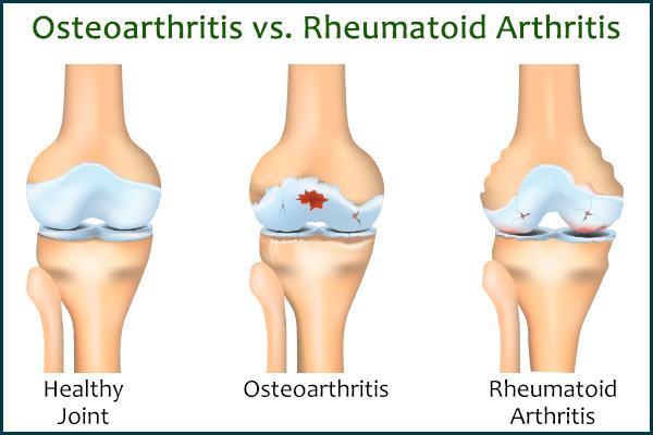 osteoarthritis versus rheumatoid arthritis