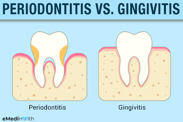 periodontitis versus gingivitis