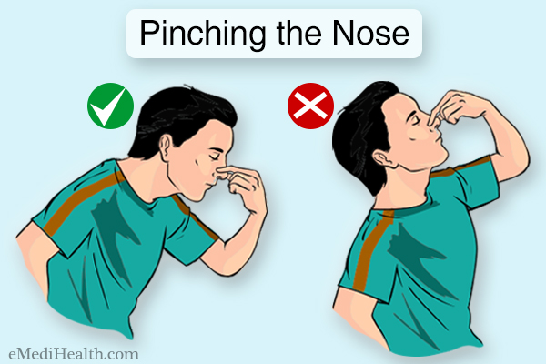 pinching the nose can help stop a regular nosebleed