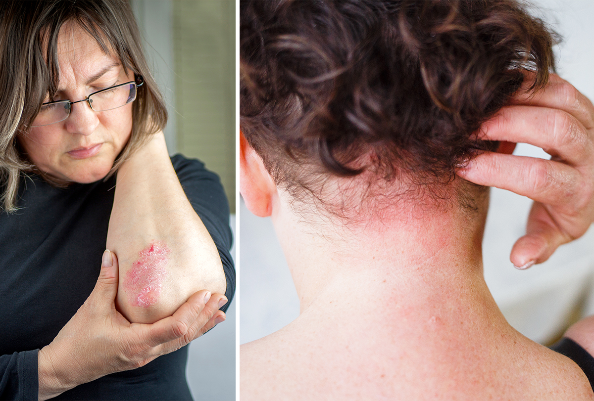 at-home remedies to treat psoriasis