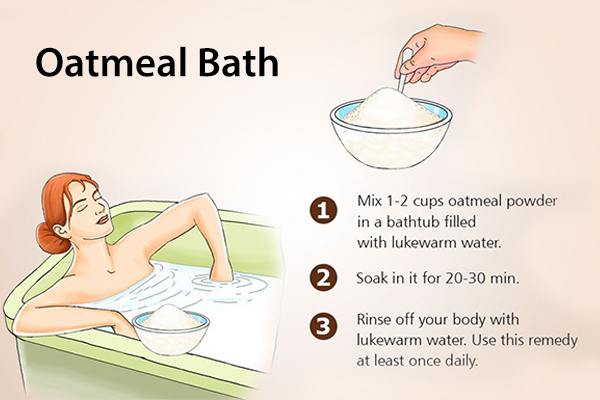 take an oatmeal bath to relieve psoriasis