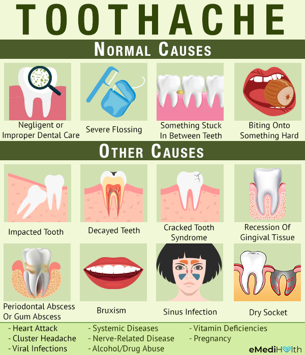 causes of toothache