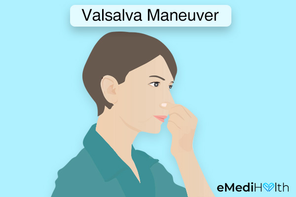Valsalva maneuver for unclogging your blocked ears