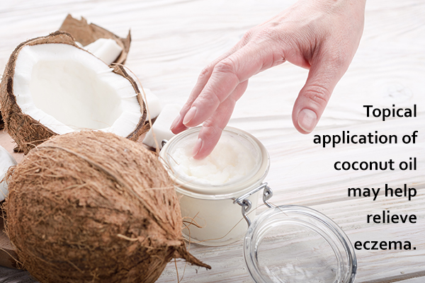 coconut oil application can help relieve itchy skin